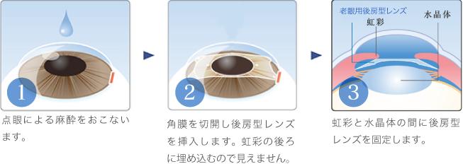 眼 内 コンタクト レンズ