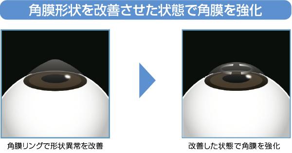 角膜形状を改善させた状態で角膜を強化