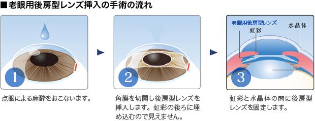 ■老眼用後房型レンズ挿入の手術の流れ